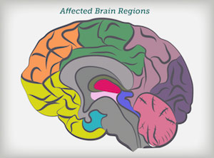 How alzheimers disease changes the brain my moment brain drain ccuart Image collections