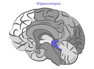 How alzheimers disease changes the brain my moment the hippocampus ccuart Choice Image